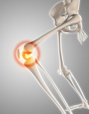 Choroba osgood - schlatter jest to bolesny obrzęk rozwijajacej się guzowatości kości piszczelowej. Stan ten zaliczany jest do zapaleń. Dowiedz się więcej.